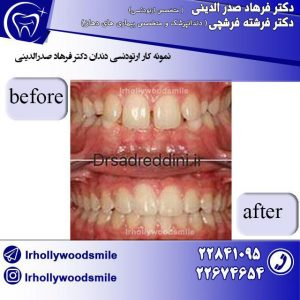 ارتودنسی دندان 1