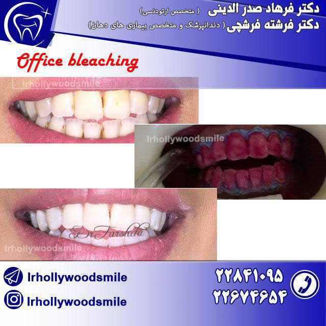 بلیچینگ دندان 1