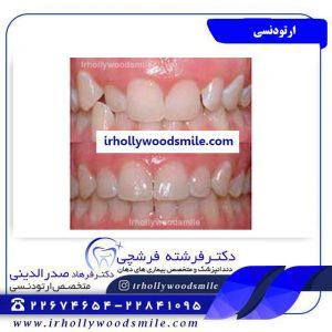 عکس ارتودنسی دندان