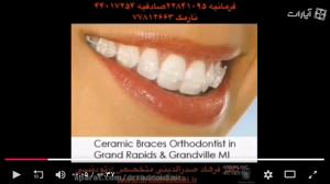 فیلم ارتودنسی دندان