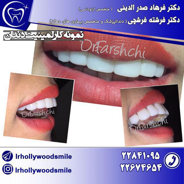 لامینیت دندان 1