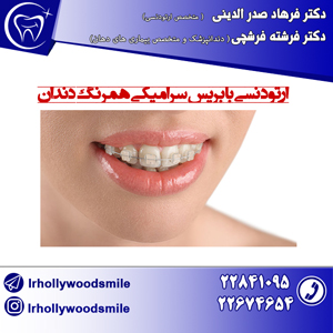 ارتودنسی همرنگ دندان