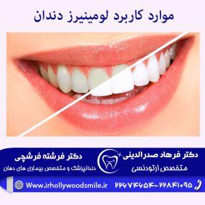 موارد کاربرد لومینیرز دندان