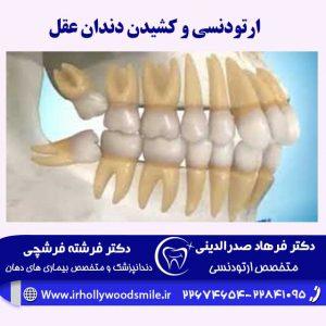 ارتودنسی دندان و کشیدن دندان عقل