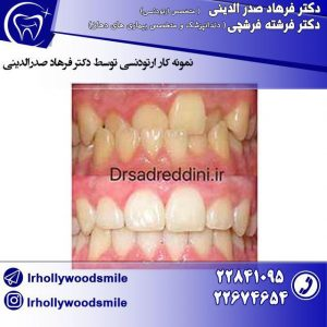 ارتودنسی-دندان-2
