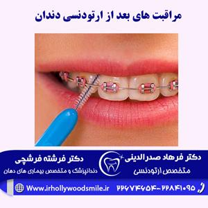 مراقبت-های-بعد-از-ارتودنسی-دندان