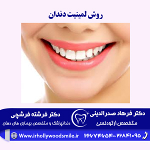 روش-لمینیت-دندان