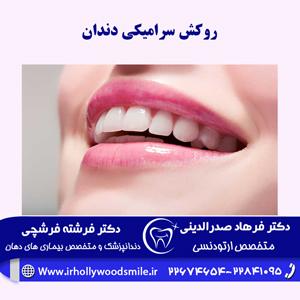 روکش-سرامیکی-دندان